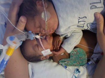 Γεννήθηκε πρόωρα, κινδύνευσε να πεθάνει αλλά τον έσωσε η αγκαλιά του δίδυμου αδερφού του