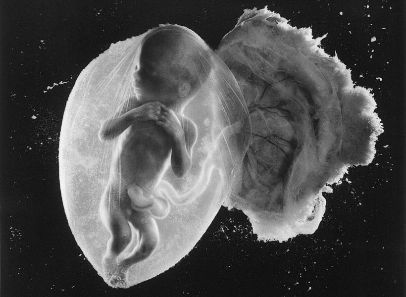 Αυτή είναι η κορυφαία φωτογραφία του περασμένου αιώνα και απεικονίζει ένα έμβρυο 18 εβδομάδων