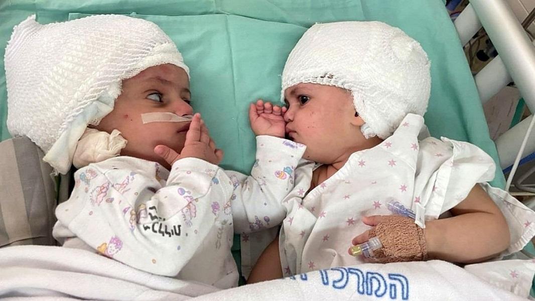 Σιαμαία κοριτσάκια κοιτάχτηκαν για πρώτη φορά μετά από επέμβαση